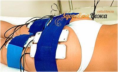 лечение целлюлита ультразвуком