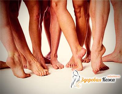 Ножки без варикозе